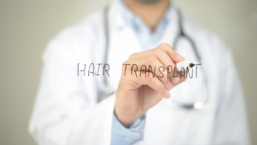 What is the Hair Transplant Black Market?